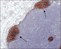 Figure 2D. Mandibular lymph node biopsy from 2B: The neoplasm peripheralizes the B-cell follicles against the nodal capsule (fading follicles) (arrows). (Immunohistochemical staining for CD79a; magnification, 4×). Courtesy Dr. Amy Durham, University of Pennsylvania