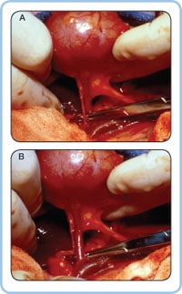 Figure 3. Isolation of the donor renal artery (A) and vein (B) for nephrectomy