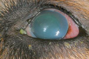 Figure 10 acute glaucoma