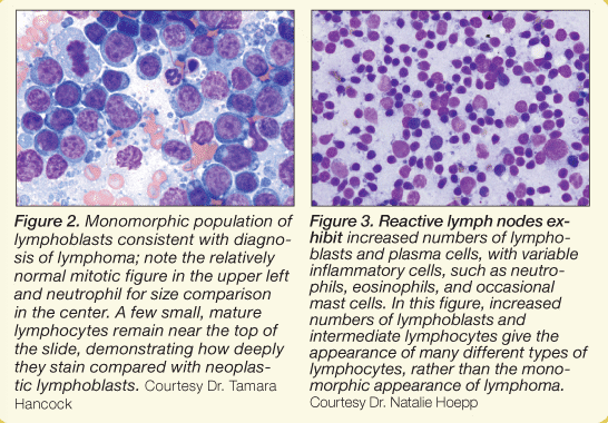 Lymph Node Cytology | What Should & Should Not Be There
