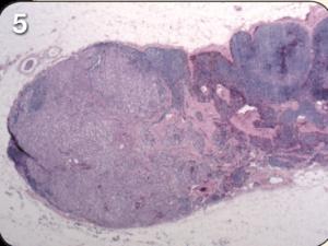 lymph fig 5
