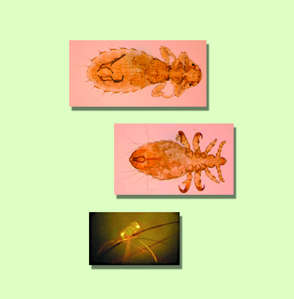 linognathus setosus diagnosis