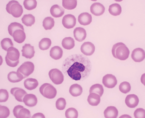 FIGURE 4. A toxic band neutrophil containing several distinct Dohle bodies, which indicate presence of systemic toxins (often bacterial) that are interfering with development of neutrophils in the bone marrow or accelerated neutrophil production. (Wright's stain; original magnification, x100)