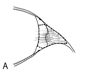 F01_Fig05A