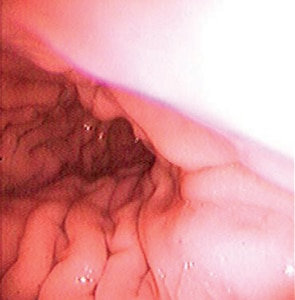 Microsoft PowerPoint - EE Upper GI Endoscopy Overview Images