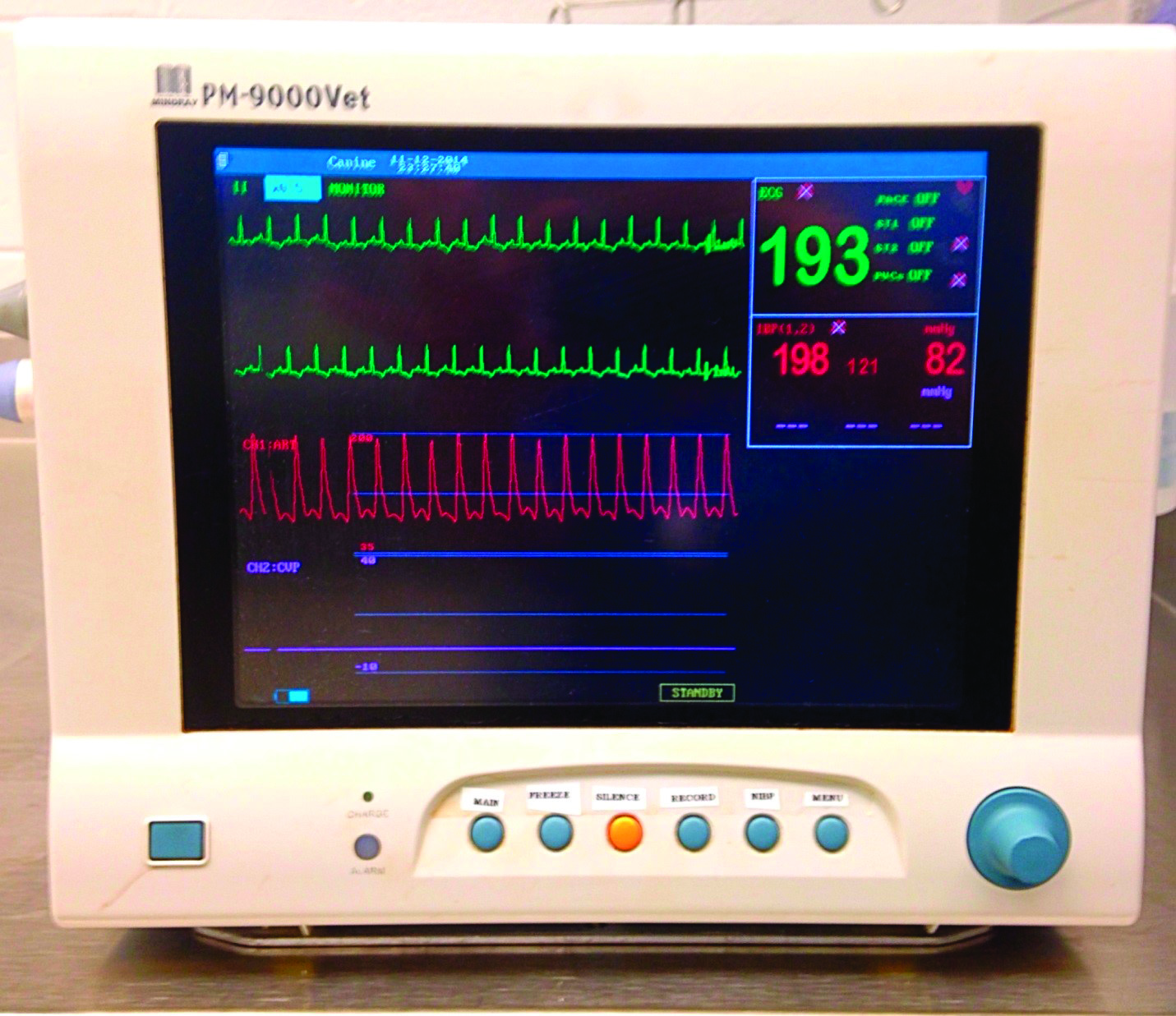 Art Monitoring System : Today s technician blood pressure monitoring from a