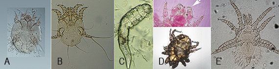 FIGURE 1. Mites that parasitize dogs: The astigmatid mites, Sarcoptes scabiei (A) and Otodectes cynotis (B), have a sack-like structure and can be identified to species level by careful examination of legs and tegument. Prostigmatid mites have distinct structures; for example, the cigar-shape appearance of Demodex (C) and hook-like palps of Cheyletiella (D). Mesostigmatid mites possess long legs, as in Ornithonyssus species (E), that give them a spider-like appearance. Courtesy National Center for Veterinary Parasitology and CAPC