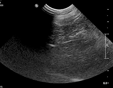 2015_0506_IE_Ultrasound Part2_Fig8