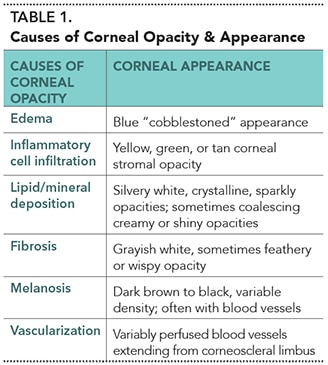 2015_0506_Ophthalmology Cornea_Table1