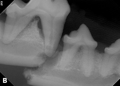 2015_0506_PD_Dental Radiography_Fig3b