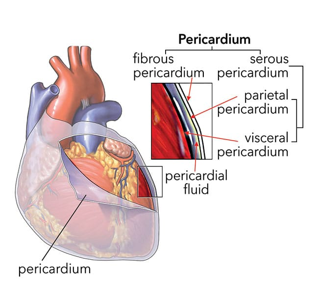 Today\'s Technician:Responding to a Cardiac Emergency:Pericardial ...