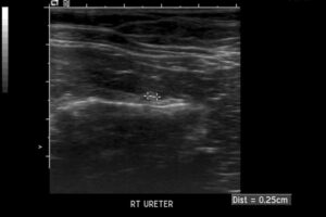 FIGURE 3. Ultrasound image of dilated ureter with ureterolith.