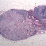 Figure-5-Lymph-final_header