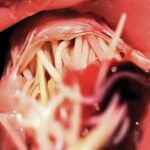FIGURE 3. A mass of adult heartworms lodged within the tricuspid valve of a dog presented with caval syndrome (view from the right ventricle).