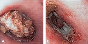 Figure 6. Endoscopic image of a rawhide esophageal foreign body in a dog being removed with a snare retrieval instrument (A); note the esophageal pressure necrosis and mucosal erosion following extraction (B).