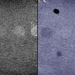 "FIGURE 7. The premise behind B color is that there are more cones than rods in the human retina, resulting in the ability to see shades of color better than shades of gray. Shown are 2 images of the same section of the US phantom. A subtle ""isoechoic"" nodule in the middle appears in the grayscale image on the left, while the blue image on the right provides color contrast, which improves visibility of that same nodule."