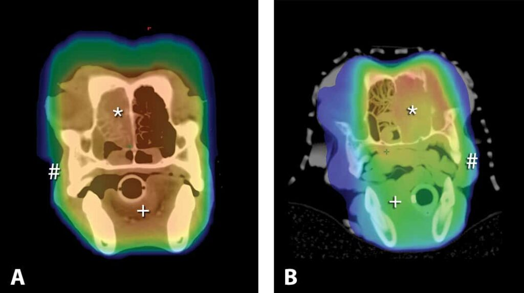 FIGURE 6. Axial-slice computed tomography scans of the nasal cavity in 2 dogs receiving definitive radiation therapy for a nasal tumor. Red and yellow areas are receiving 100% of the prescribed dose; blue and green areas are receiving 50% of the prescribed dose. Three-dimensional conformal radiation therapy plan (A); IMRT plan (B). Note that the volume of normal tissue, such as the mandible and skin, receive a significantly reduced dose. * = tumor; + = tongue; # = lips