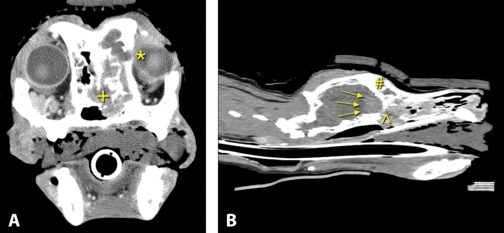 FIGURE 8. CT scans of a patient with nasal squamous cell carcinoma; note the extensive bony destruction and forebrain invasion. Axial postcontrast CT scan at the level of the cribriform plate and orbit; note the extensive lysis of the medial orbit (*) and lysis of the nasal turbinates (+) (A). Sagittal reconstruction; note the focal contrast enhancement in the forebrain (arrows), destruction of the cribriform plate (^), and invasion into the frontal sinus (#) (B).
