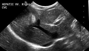 Figure 5. Hepatic vein entering the caudal vena cava as it courses through the liver (quadrate lobe).