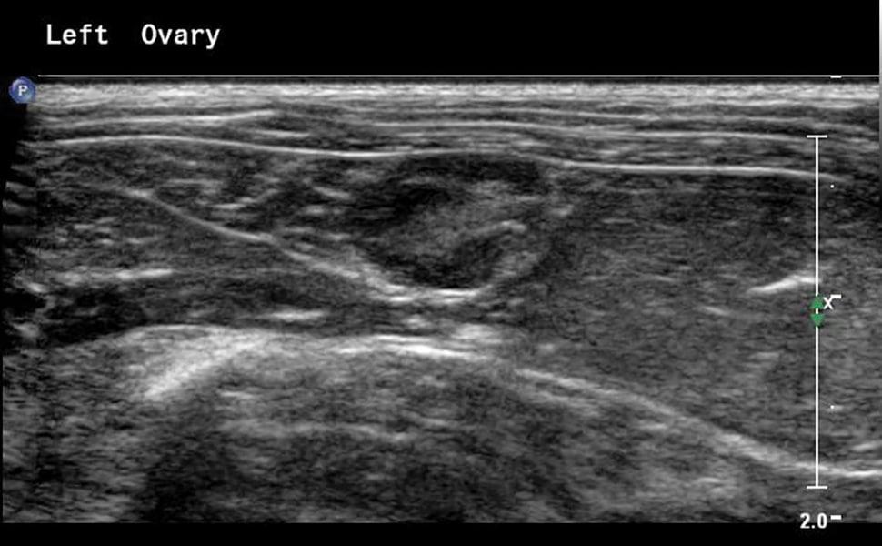 Imaging EssentialsSmall Animal Abdominal UltrasonographyA Tour of ...