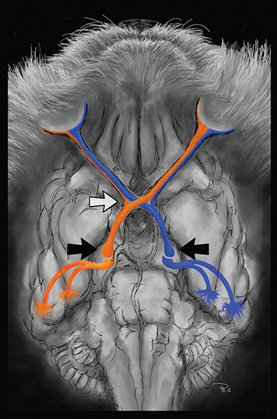FIGURE 2. Visual pathway from the ventral aspect of the brain. The blue and orange lines represent visual fields from each eye. White arrow—optic chiasm. Black arrows—lateral geniculate nuclei in the thalamus.
