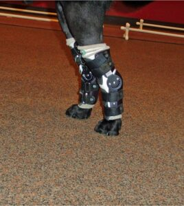 FIGURE 11. Patient that sustained a bilateral Achilles tendon rupture secondary to trauma wearing bilateral controlled, range-of-motion, hinged tarsal braces.