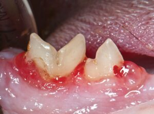 FIGURE 1. Clinical appearance of tooth resorption of right mandibular fourth premolar and first molar.