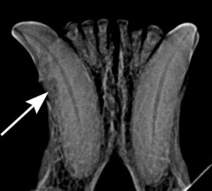 FIGURE 2. Intraoral radiograph of Stage 2 tooth resorption (arrow) of the right mandibular canine.