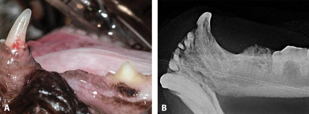 FIGURE 4. Stage 4a tooth resorption of left mandibular canine; clinical appearance (A) and radiographic appearance (B) showing that crown and root are equally affected.