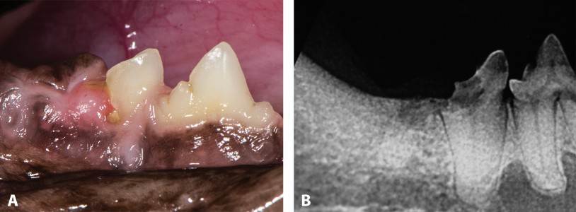 FIGURE 5. Stage 4b tooth resorption; clinical appearance of tooth resorption of right mandibular first molar (A) and intraoral radiograph confirming Stage 4b tooth resorption (B).
