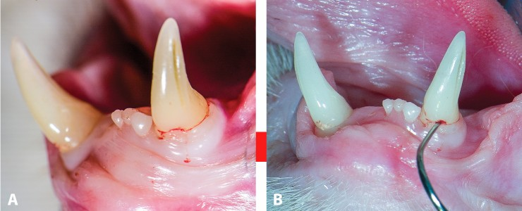 FIGURE 12. Clinical appearance of slight gingival overgrowth on labial surface of left mandibular canine (A); probing with explorer reveals tooth resorption (B).