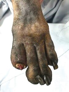FIGURE 7. The shaved foot of a Gordon setter with a digital SCC, showing severe swelling of digit #5; a broken toe nail and some soft tissue proliferation with discharge are seen at the nail bed.