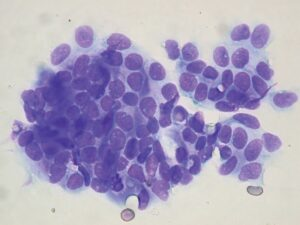 FIGURE 12. Cytology of a trichoblastoma; note the cluster of small round to cuboidal cells with small amounts of cytoplasm and relatively uniform nuclei (Diff Quik stain; magnification, 50×).