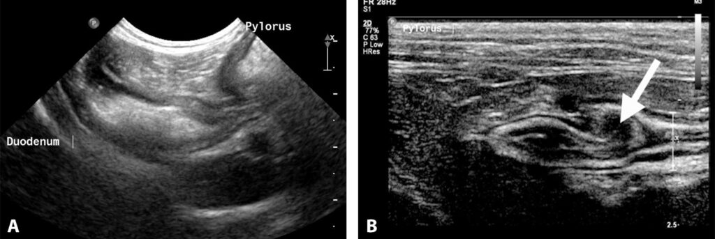 Figure 8. Transverse (short-axis) imaging plane of the pyloroduodenal junction in a dog (A) and a cat (B). In each case, the pylorus is on the right of the image and the duodenum is on the left. The thickening of the muscularis layer (arrow) is the pyloric sphincter.
