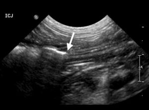 Figure 10. Longitudinal image of the ileocolic junction (arrow) in a normal dog.