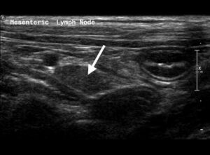 Figure 12. Longitudinal axis (oblique sagittal) imaging plane of a normal mesenteric lymph node (arrow) in a dog.