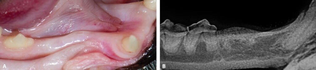FIGURE 1. Gingival enlargement without clinical inflammation over an area once occupied by the crown of the right mandibular third premolar (A). Radiograph confirming stage 5 tooth resorption not requiring treatment (B).