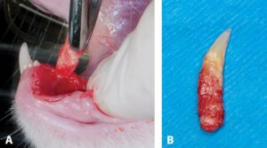 FIGURE 5. Tooth removed from the oral cavity (A); extracted tooth (B).