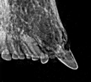 FIGURE 8. Intraoral radiograph confirming type 2 tooth resorption.