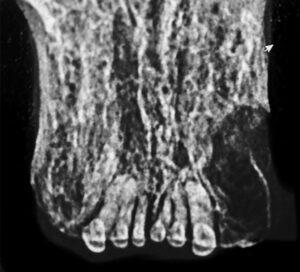 Figure 14. Radiograph of operative area.
