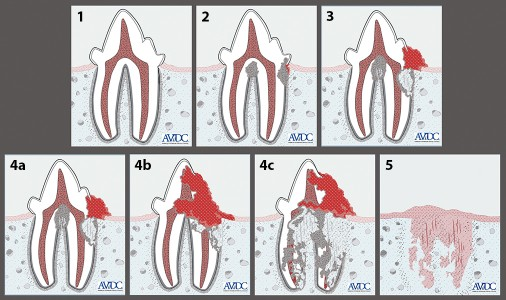 FIGURE A. AVDC classification of clinical stages of tooth resorption. Courtesy AVDC