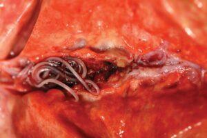 FIGURE 14. This distal arterial branch contains both live and dead worms. The addition of active embolization, well-organized granulation tissue, and significant fibrosis make it unlikely for disease such as this to completely resolve.