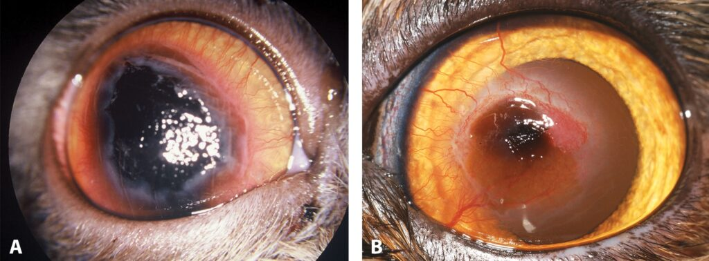 FIGURE 6. Corneal sequestrum; note the large, central, dense black area on the cornea with 360-degree vascularization (A) and the small, central, focal black area on the cornea and vascularization (B).