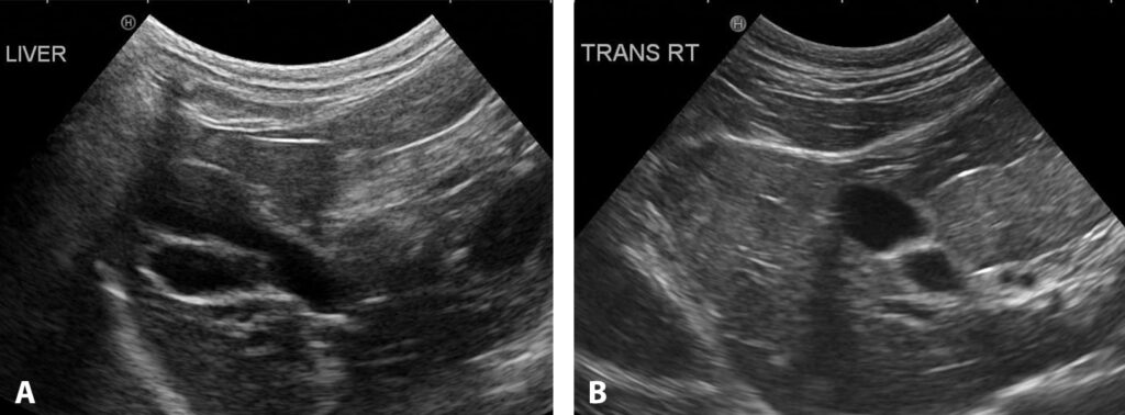FIGURE 10. A bilobed liver is a normal anatomic variant in cats. Long-axis image showing 2 chambers associated with the same gallbladder (A); short-axis image from a different cat showing 2 compartments stacked on each other (B).