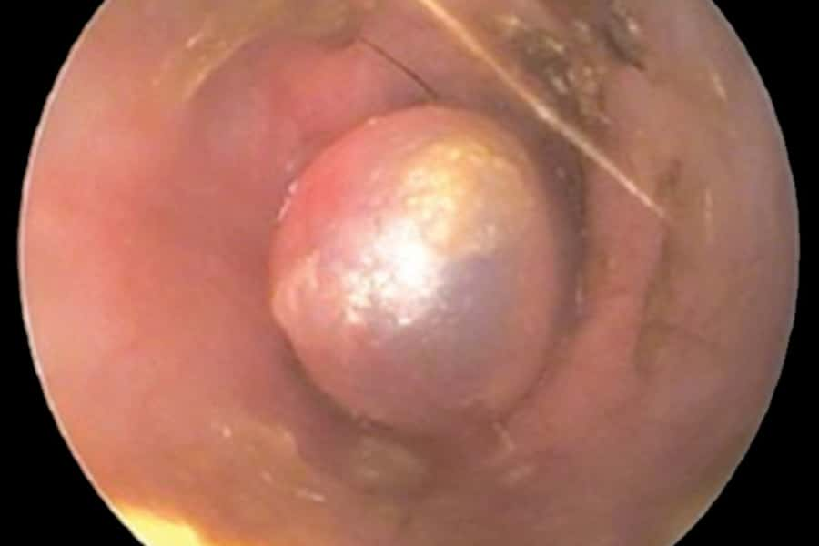 Chronic Otitis: A Dermatologist's Perspective on Surgery