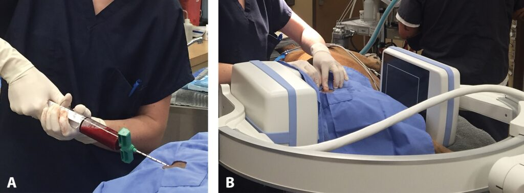FIGURE 3. Bone marrow collection (A) from the proximal femur with fluoroscopic guidance (B) for processing of bone marrow aspirate concentrate (BMAC).