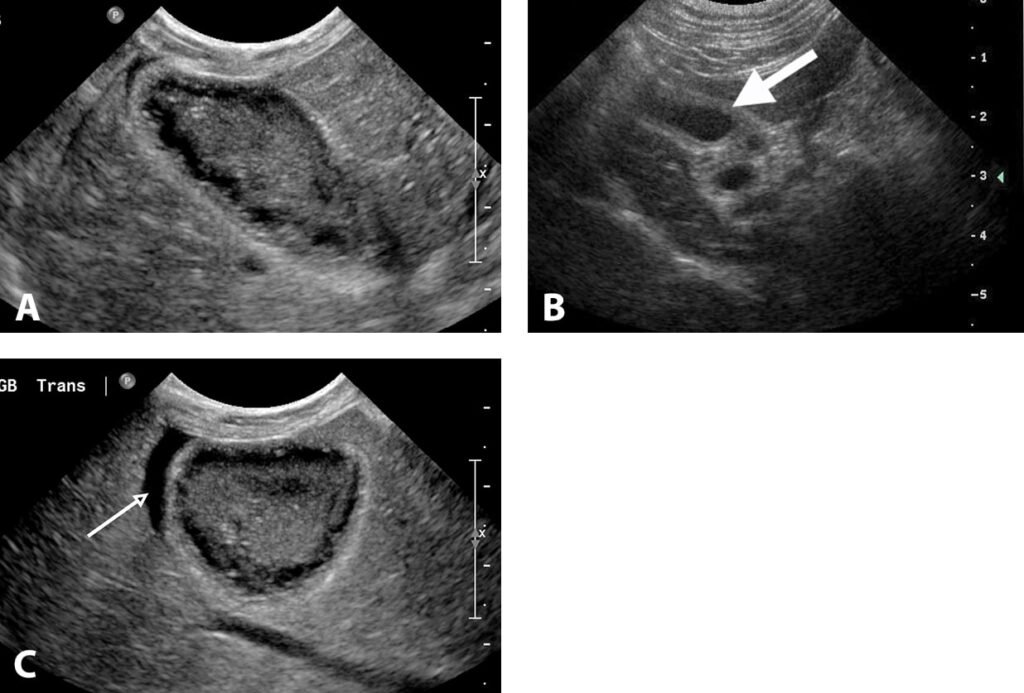 "FIGURE 11. Cholecystitis in 3 different animals. Long-axis image of the right side of the liver in a dog with clinical signs of vomiting, weight loss, and icterus (A); the gallbladder wall is markedly thickened with irregular margins. Hypoechoic areas are noted along the wall of the gallbladder consistent with abnormal mucus collections. Hyperechoic material is noted in the middle of the gallbladder, and there is a slight effusion cranial to the gallbladder (small anechoic crescent). Dilated bile and cystic ducts in a cat with cholecystitis and cholangiohepatitis (B); the ductal walls are thickened, dilated, and tortuous (arrow). Transverse section of the right side of the liver in a dog with cholecystitis (C); the gallbladder wall is thickened and hyperechoic and has irregular margins. There is a focal anechoic effusion lateral to the gallbladder (arrow) consistent with inflammation adjacent to the gallbladder wall. This appearance can be seen in dogs with mucoceles and is consistent with ""leakage"" of bile through a necrotic wall, resulting in a biliary peritonitis."