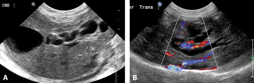 FIGURE 15. Long-axis, right-sided liver image in a cat in which a distal biliary mass has obstructed the bile duct (A). The bile and cystic ducts are dilated (> 3 mm) and tortuous. Intrahepatic biliary ductal dilation is identified within the left side of the liver in this transverse image (B). The color Doppler image documents normal flow within the hepatic and portal veins. The biliary ductal dilation is seen without flow in the liver.