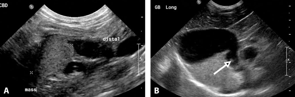 "FIGURE 16. Transverse image in a cat with a biliary adenocarcinoma inside the bile duct near the level of the duodenum and pancreas (A). The mass is distal to the dilated bile duct and outlined by measuring markers (x and +). The label ""distal"" is located on top of the dilated bile duct. Long-axis image of the liver in a cat with an abnormally dilated cystic duct (arrow) at the neck of the gallbladder with a cholelith in the distal bile duct, resulting in extrahapatic and intrahepatic biliary dilation (B). The hypoechoic circle adjacent to the dilated cystic duct is the portal vein."