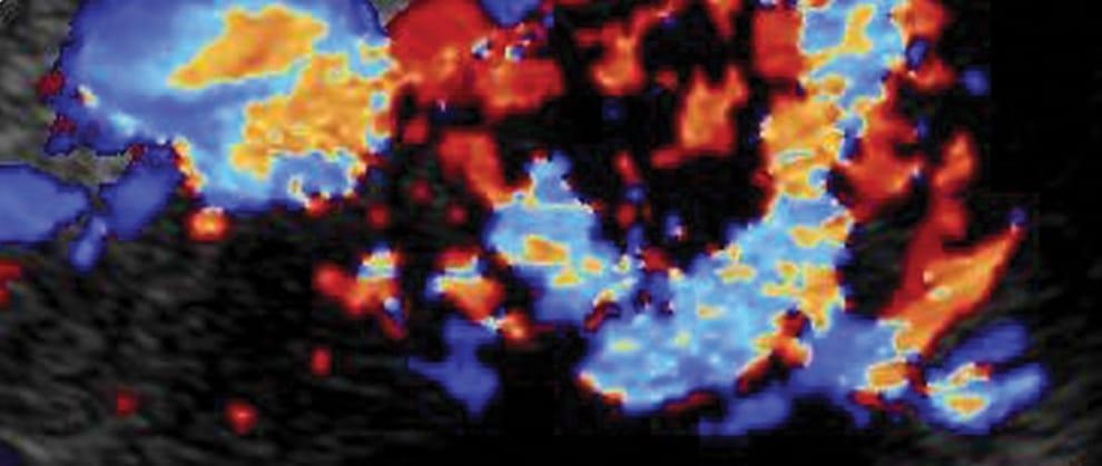 Imaging Essentials</br>Small Animal Abdominal Ultrasonography</br>Liver & GallBladder: Part 2